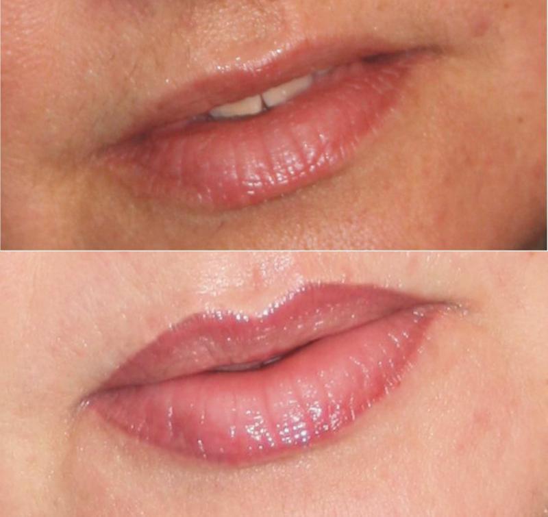 lippen permanent make up von spezialistenhand. Black Bedroom Furniture Sets. Home Design Ideas